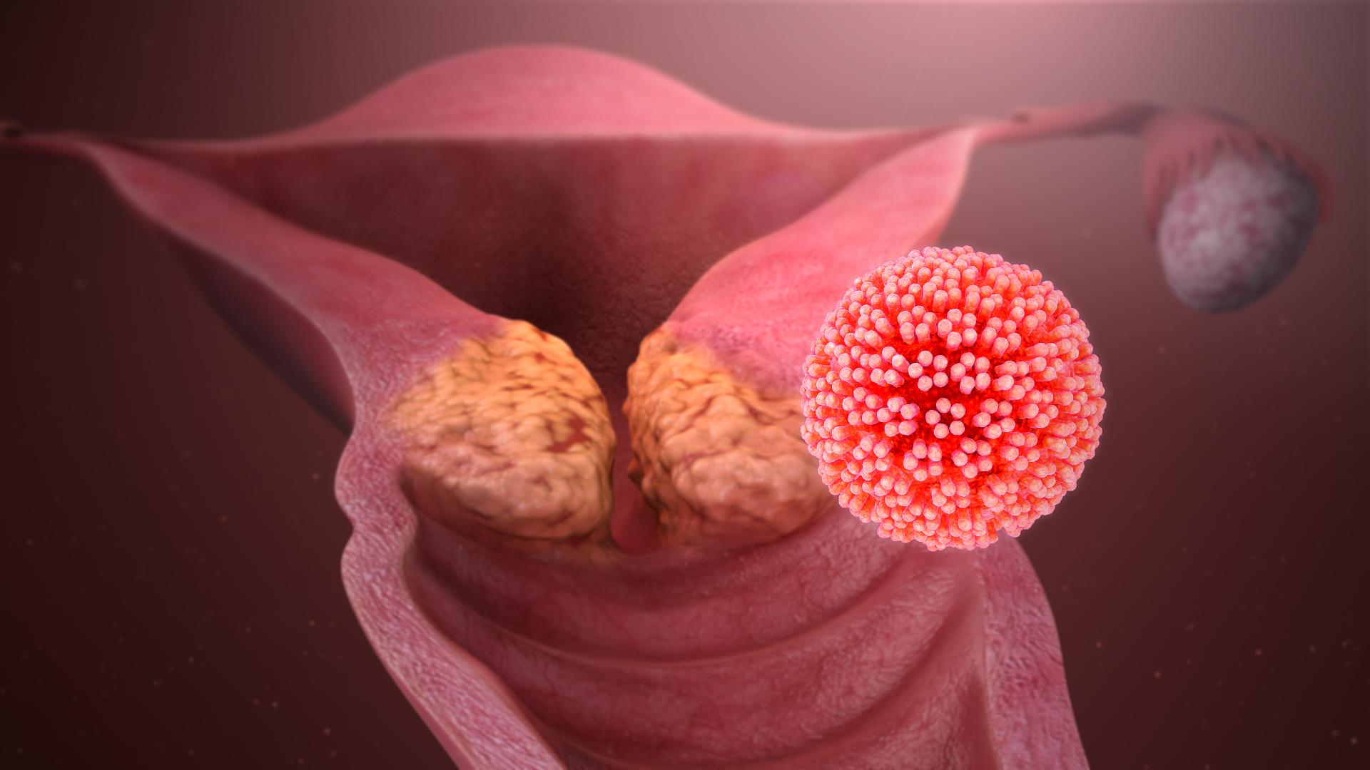 hpv virus loswerden naturlich heilen